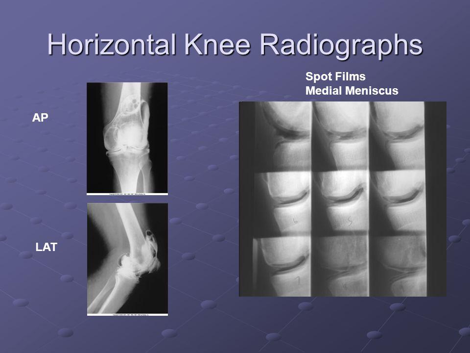 Horizontal Knee Radiographs Spot Films Medial Meniscus AP LAT