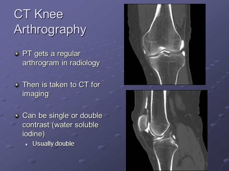 CT Knee Arthrography PT gets a regular arthrogram in radiology Then is taken to CT for imaging Can be single or double contrast (water soluble iodine) Usually double Usually double
