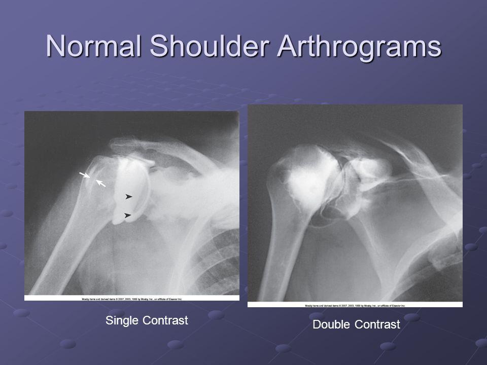 Normal Shoulder Arthrograms Single Contrast Double Contrast