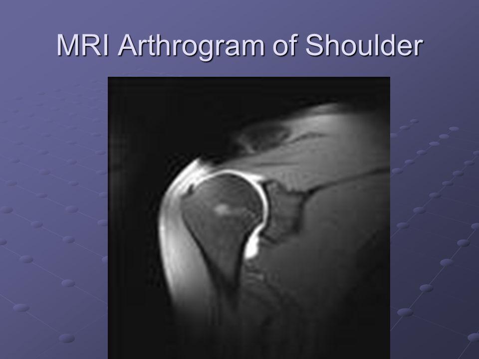 MRI Arthrogram of Shoulder