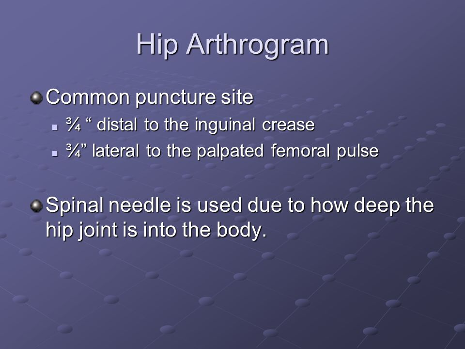 Hip Arthrogram Common puncture site ¾ distal to the inguinal crease ¾ distal to the inguinal crease ¾ lateral to the palpated femoral pulse ¾ lateral to the palpated femoral pulse Spinal needle is used due to how deep the hip joint is into the body.