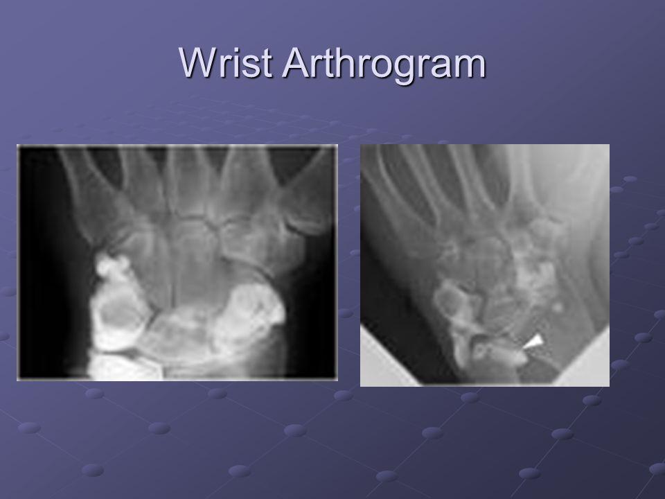 Wrist Arthrogram