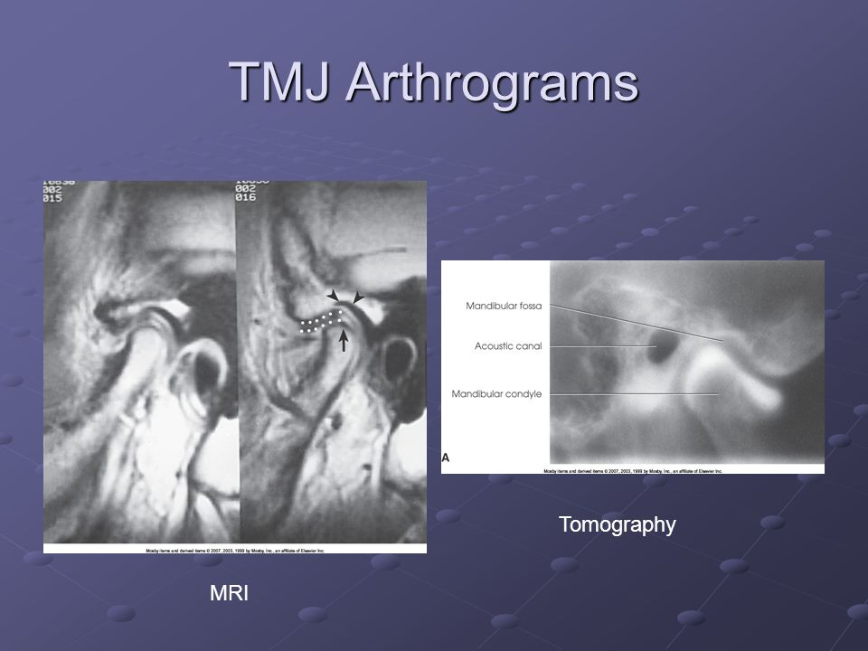 TMJ Arthrograms MRI Tomography