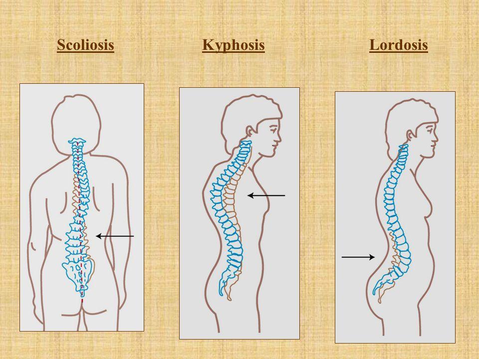 Scoliosis Kyphosis Lordosis