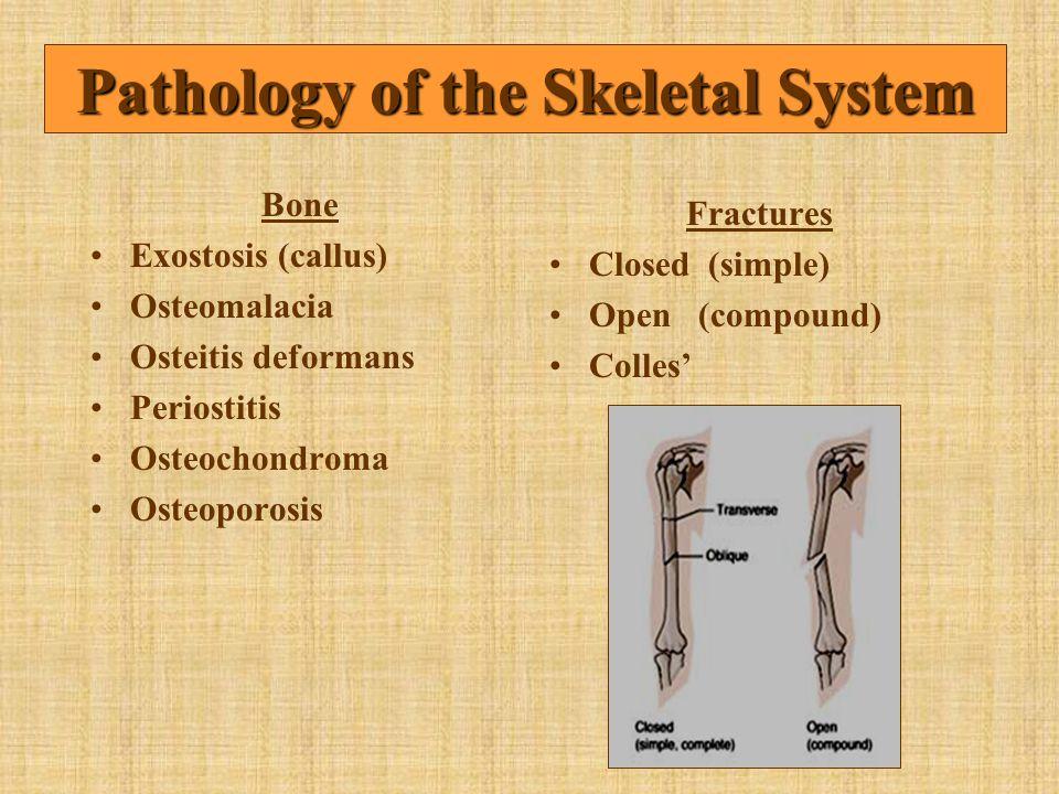 Bone Exostosis (callus) Osteomalacia Osteitis deformans Periostitis Osteochondroma Osteoporosis Fractures Closed (simple) Open (compound) Colles' Path