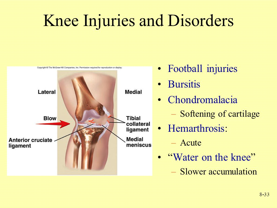 8-33 Knee Injuries and Disorders Football injuries Bursitis Chondromalacia –Softening of cartilage Hemarthrosis: –Acute Water on the knee –Slower accumulation
