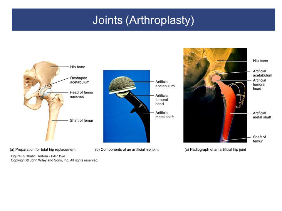 Joints (Arthroplasty)