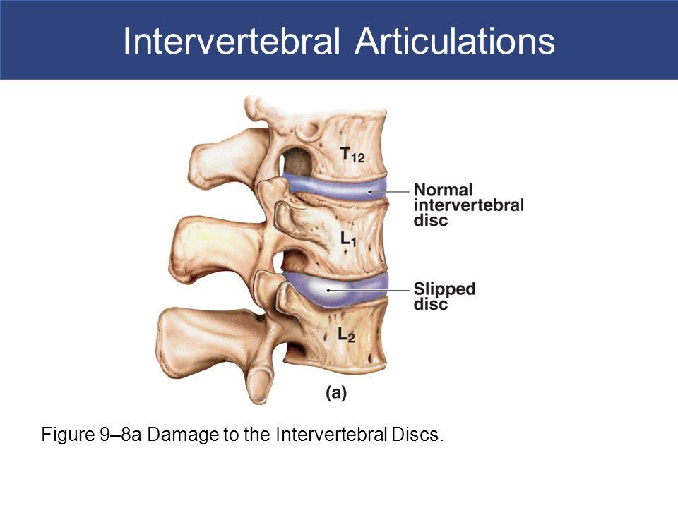 Intervertebral Articulations Figure 9–8a Damage to the Intervertebral Discs.