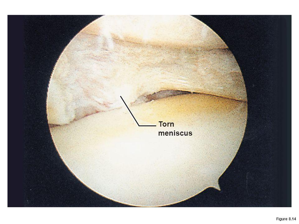 Figure 8.14 Torn meniscus
