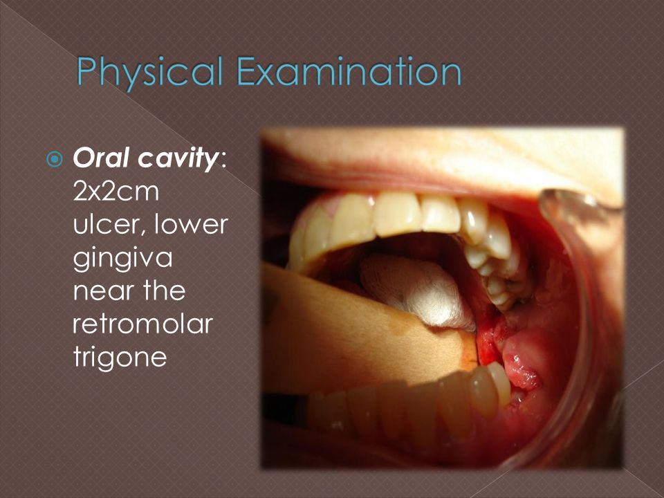  Ulcers in the gingiva, tongue, palate, and tonsillar area  Clinical features: Elevated,ulcerated area that may proliferate rapidly, giving the appearance of traumatic inflammation  underlying HIV infection Harisson's Principles of Internal Medicine 17 th ed.