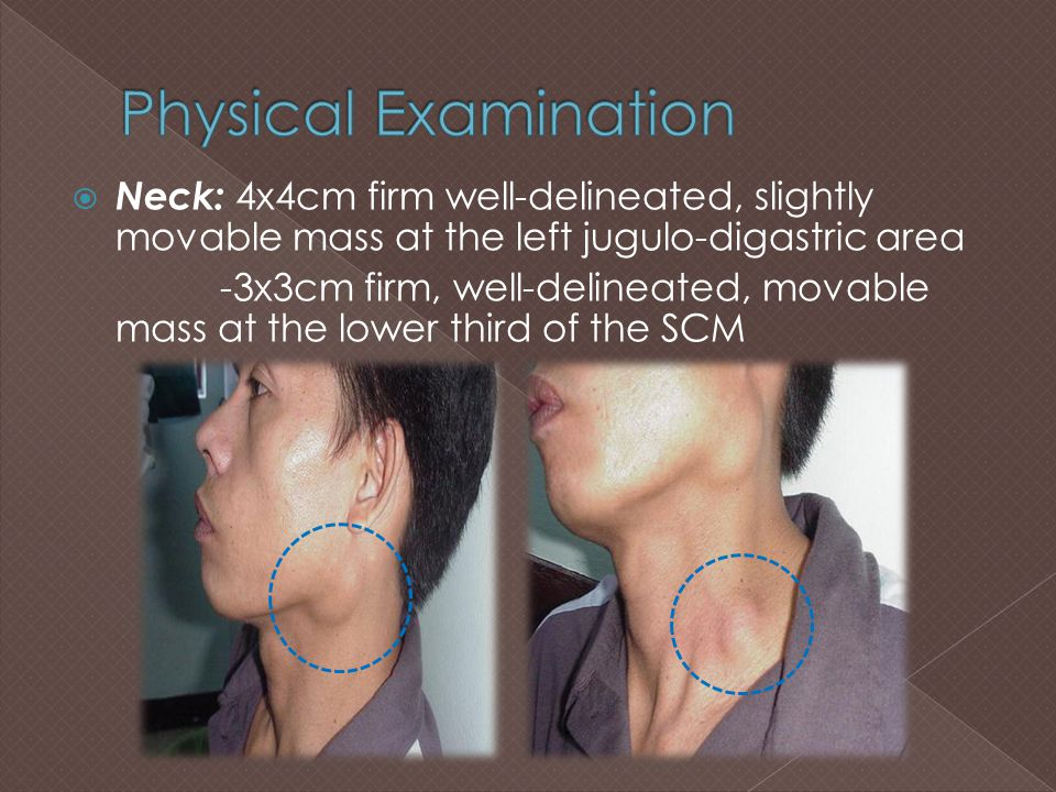  Neck: 4x4cm firm well-delineated, slightly movable mass at the left jugulo-digastric area -3x3cm firm, well-delineated, movable mass at the lower th