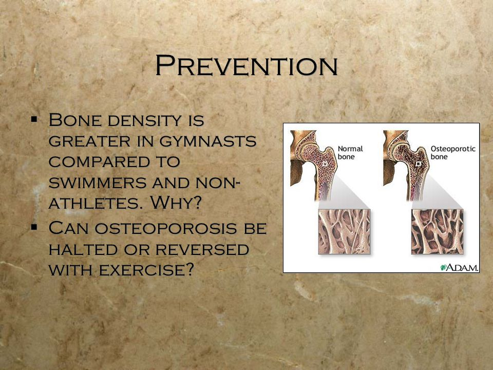 Prevention  Bone density is greater in gymnasts compared to swimmers and non- athletes.