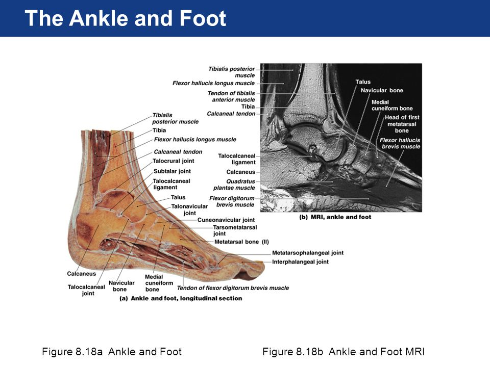 Figure 8.18a Ankle and FootFigure 8.18b Ankle and Foot MRI The Ankle and Foot