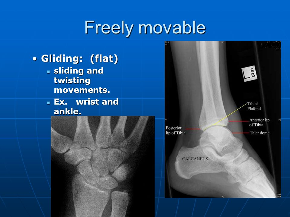 Freely movable Condyloid: (oval)Condyloid: (oval) variety of movements.