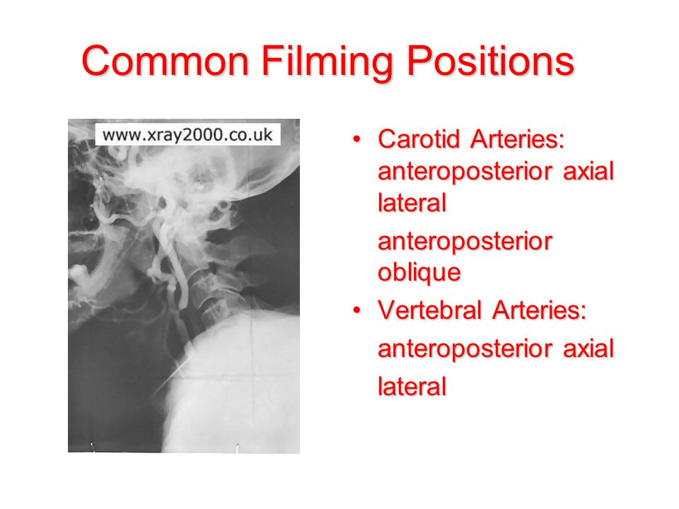 Common Filming Positions Carotid Arteries: anteroposterior axial lateralCarotid Arteries: anteroposterior axial lateral anteroposterior oblique Vertebral Arteries:Vertebral Arteries: anteroposterior axial lateral