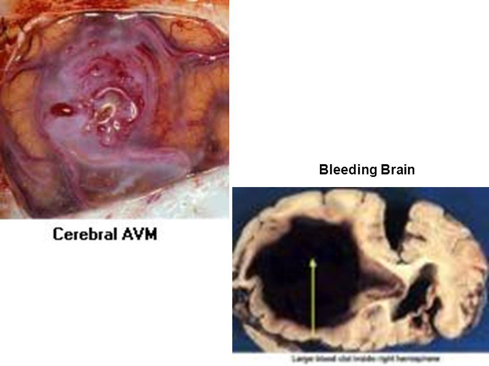Lateral Views of Carotid Arteries
