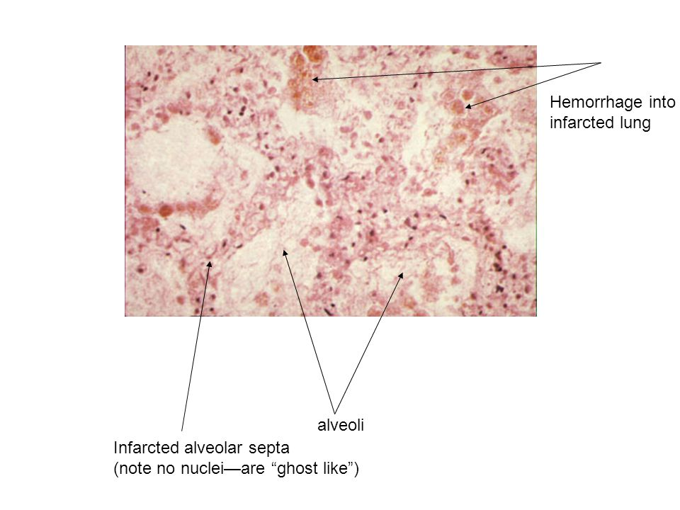 """alveoli Hemorrhage into infarcted lung Infarcted alveolar septa (note no nuclei—are """"ghost like"""")"""