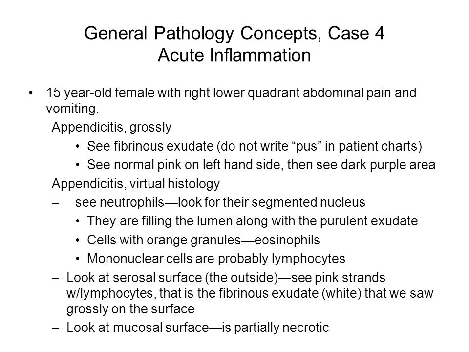 General Pathology Concepts, Case 4 Acute Inflammation 15 year-old female with right lower quadrant abdominal pain and vomiting. Appendicitis, grossly