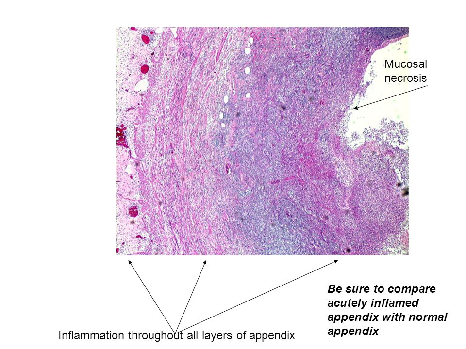 Inflammation throughout all layers of appendix Mucosal necrosis Be sure to compare acutely inflamed appendix with normal appendix