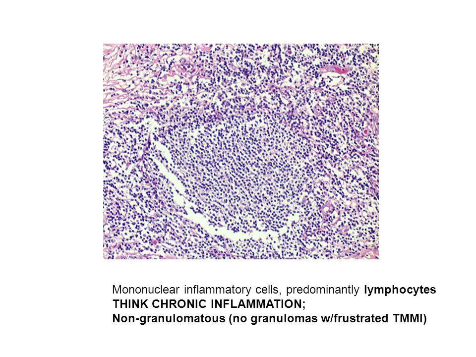 Mononuclear inflammatory cells, predominantly lymphocytes THINK CHRONIC INFLAMMATION; Non-granulomatous (no granulomas w/frustrated TMMI)