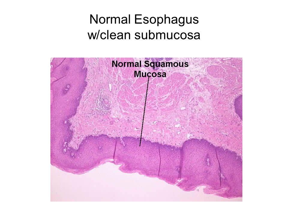 Normal Esophagus w/clean submucosa