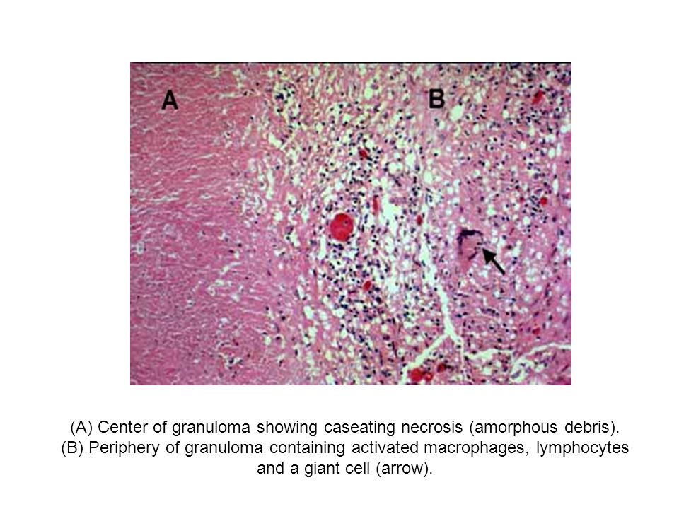 (A) Center of granuloma showing caseating necrosis (amorphous debris). (B) Periphery of granuloma containing activated macrophages, lymphocytes and a