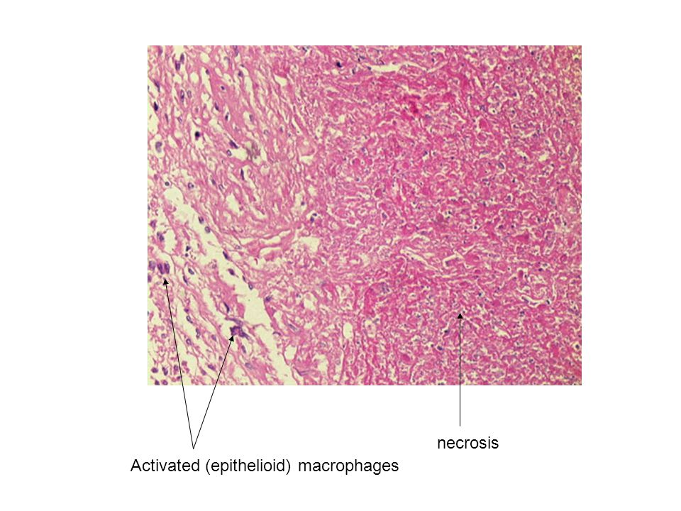 necrosis Activated (epithelioid) macrophages