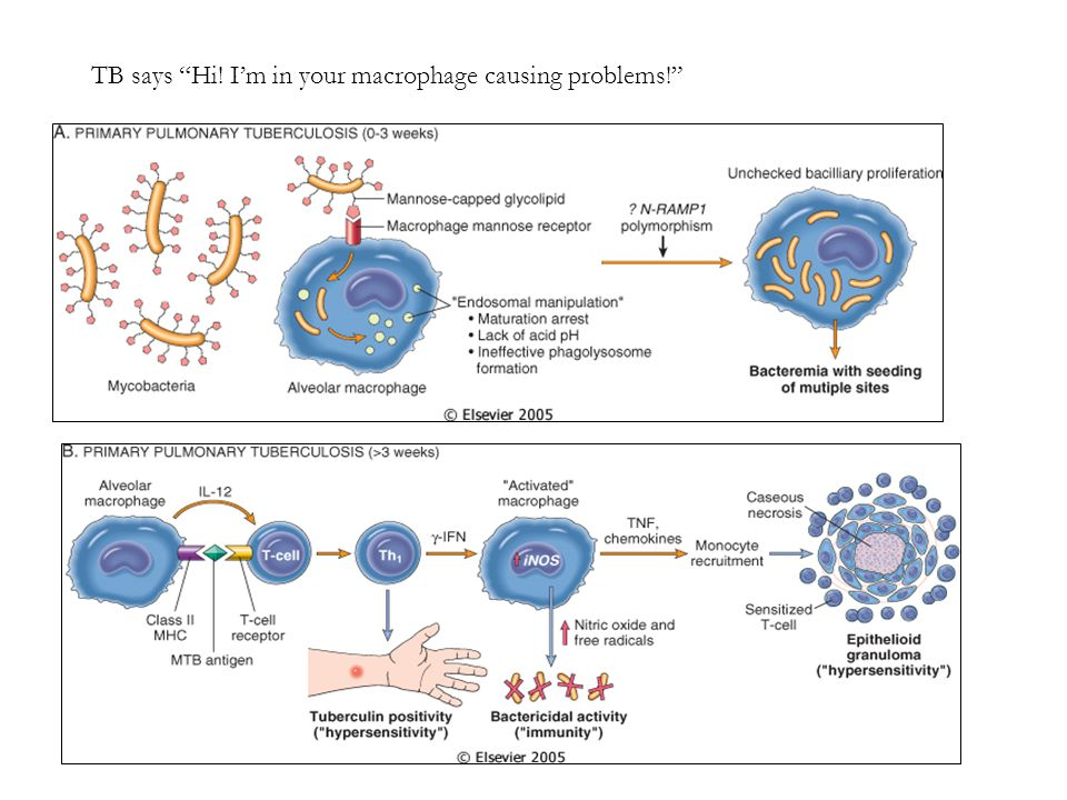 """TB says """"Hi! I'm in your macrophage causing problems!"""""""