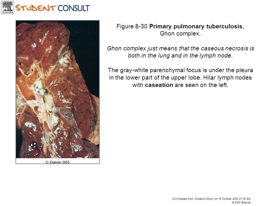 Figure 8-30 Primary pulmonary tuberculosis, Ghon complex.