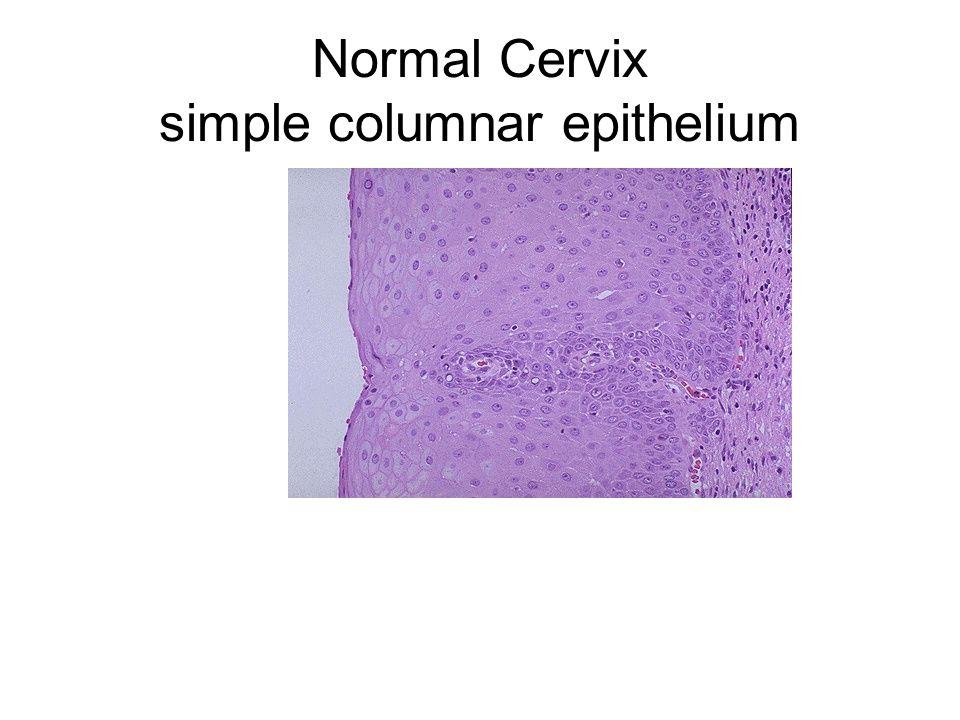 Normal Cervix simple columnar epithelium