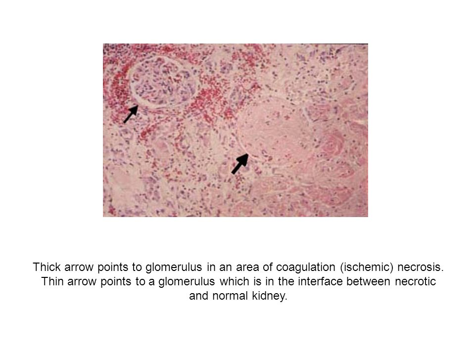 Thick arrow points to glomerulus in an area of coagulation (ischemic) necrosis.