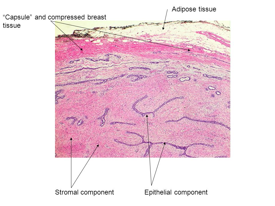Adipose tissue Capsule and compressed breast tissue Epithelial componentStromal component