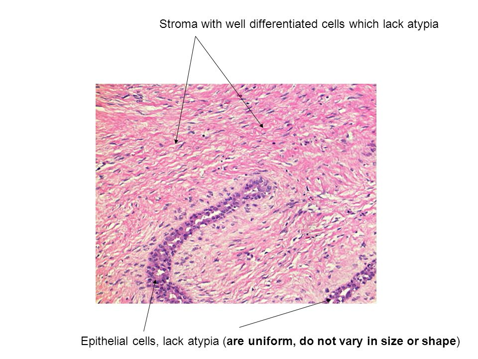 Stroma with well differentiated cells which lack atypia Epithelial cells, lack atypia (are uniform, do not vary in size or shape)