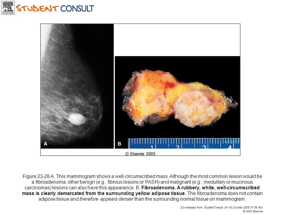 Figure 23-28 A, This mammogram shows a well-circumscribed mass.