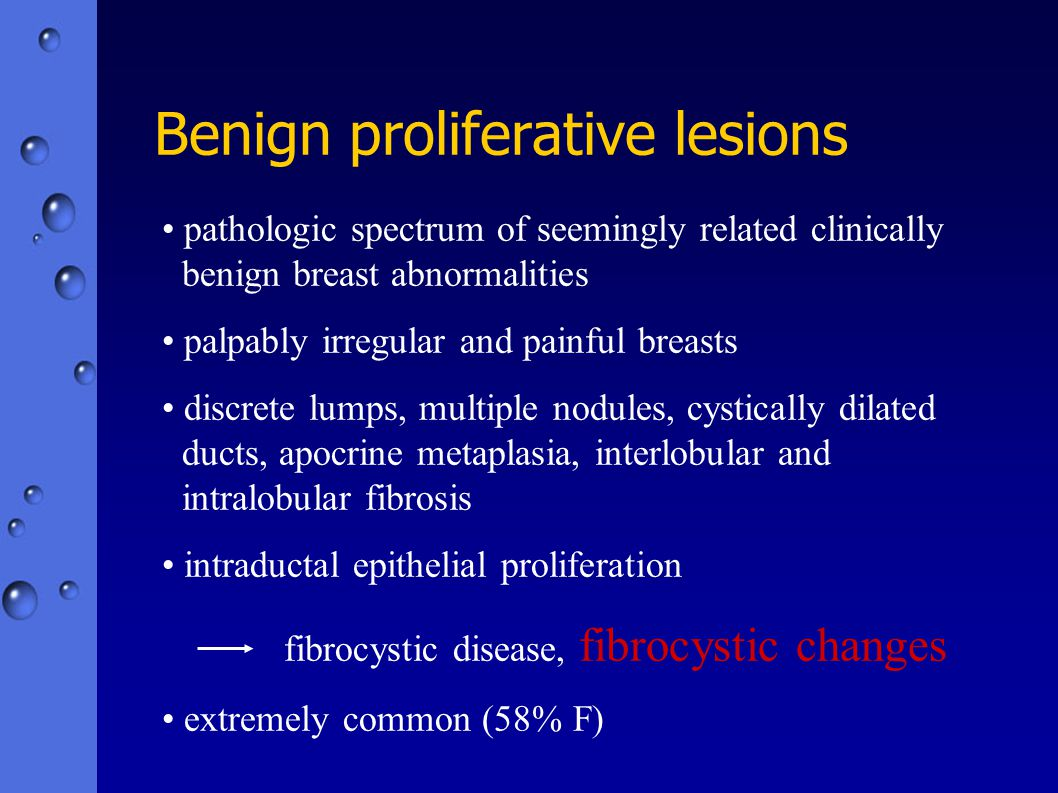 Benign proliferative lesions pathologic spectrum of seemingly related clinically benign breast abnormalities palpably irregular and painful breasts di