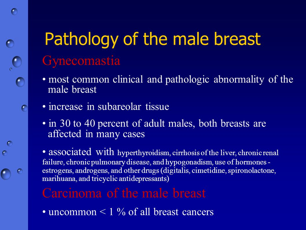 Pathology of the male breast Gynecomastia most common clinical and pathologic abnormality of the male breast increase in subareolar tissue in 30 to 40