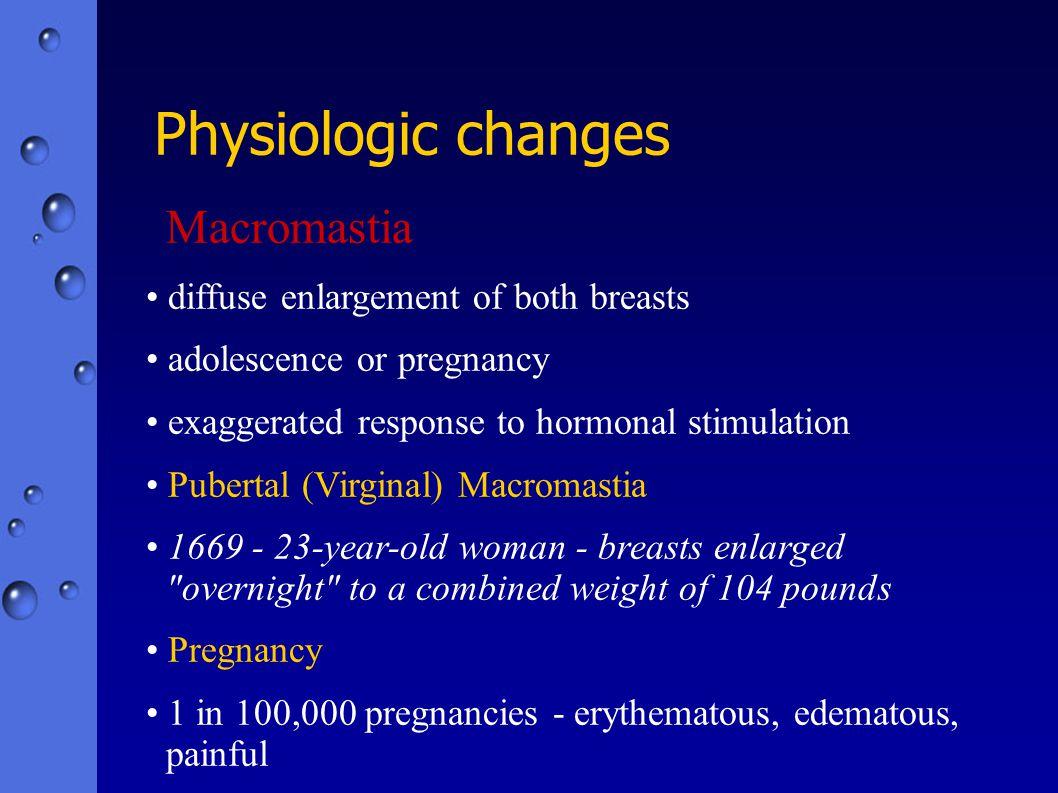 Macromastia diffuse enlargement of both breasts adolescence or pregnancy exaggerated response to hormonal stimulation Pubertal (Virginal) Macromastia