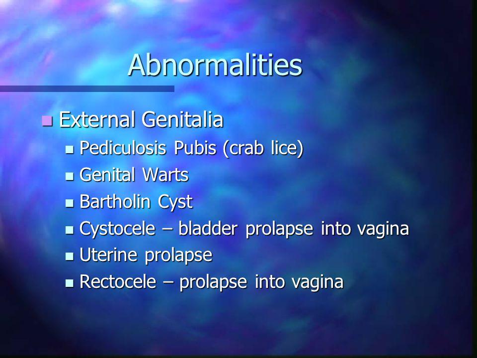 Abnormalities External Genitalia External Genitalia Pediculosis Pubis (crab lice) Pediculosis Pubis (crab lice) Genital Warts Genital Warts Bartholin Cyst Bartholin Cyst Cystocele – bladder prolapse into vagina Cystocele – bladder prolapse into vagina Uterine prolapse Uterine prolapse Rectocele – prolapse into vagina Rectocele – prolapse into vagina