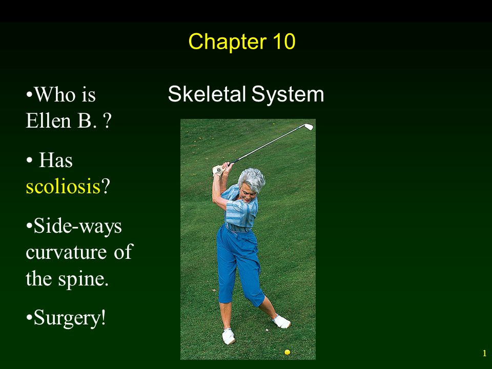 1 Chapter 10 Skeletal System Who is Ellen B.Has scoliosis.