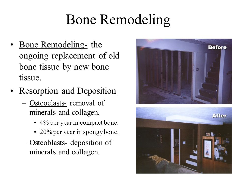 5-16 Bone Remodeling Bone Remodeling- the ongoing replacement of old bone tissue by new bone tissue.