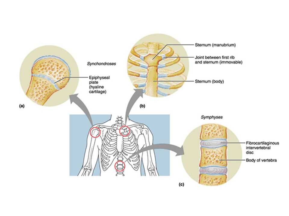 Synovial Joints Those joints in which the articulating bones are separated by a fluid-containing joint cavity All are freely movable diarthroses Examples – all limb joints, and most joints of the body