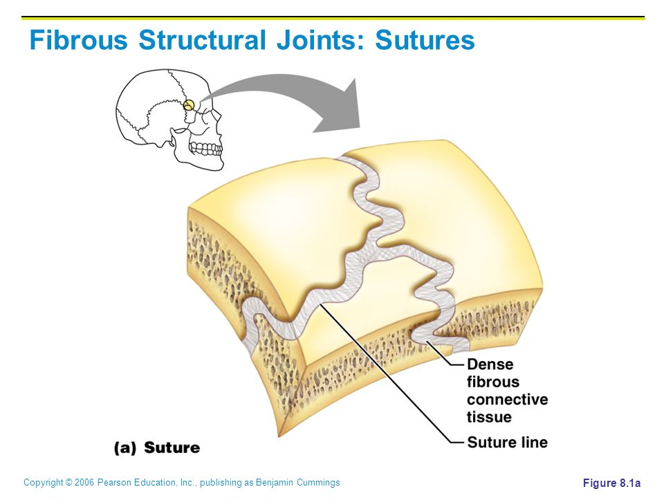 Copyright © 2006 Pearson Education, Inc., publishing as Benjamin Cummings Fibrous Structural Joints: Sutures Figure 8.1a