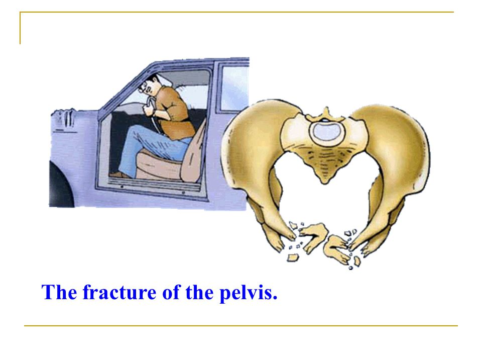 The fracture of the pelvis.