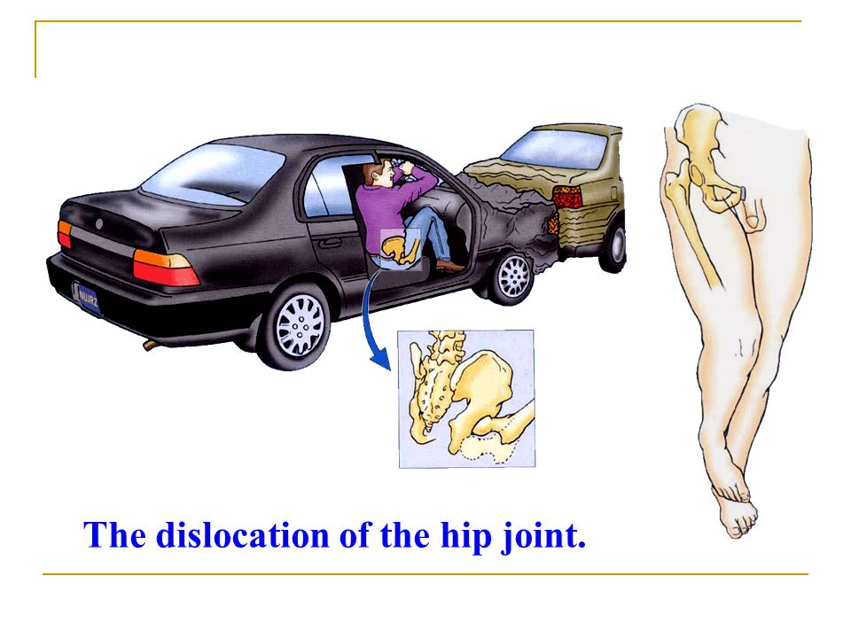 The dislocation of the hip joint.