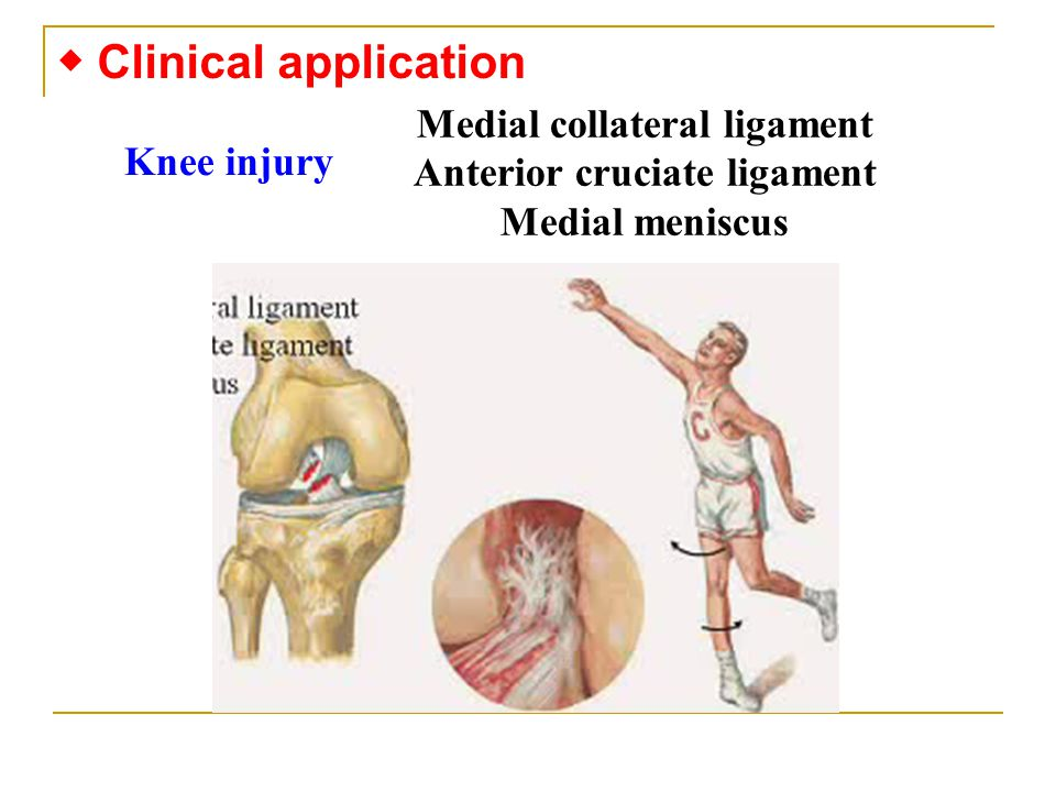 ◆ Clinical application Knee injury Medial collateral ligament Anterior cruciate ligament Medial meniscus