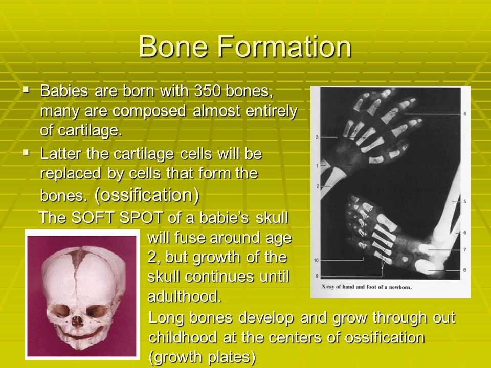 Bone Formation  Babies are born with 350 bones, many are composed almost entirely of cartilage.  Latter the cartilage cells will be replaced by cell