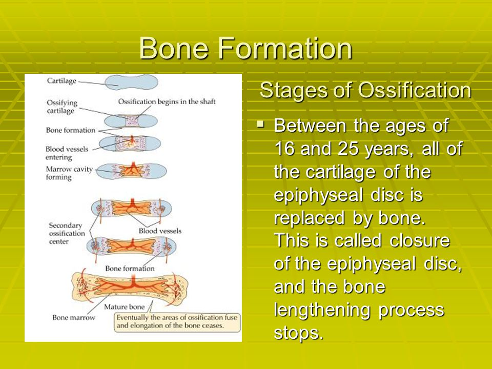 Bone Formation BBBBetween the ages of 16 and 25 years, all of the cartilage of the epiphyseal disc is replaced by bone. This is called closure of