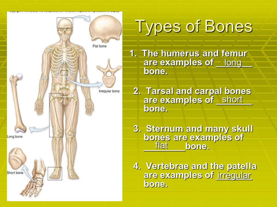 Types of Bones 1. The humerus and femur are examples of _______ bone. 2. Tarsal and carpal bones are examples of _______ bone. 3. Sternum and many sku