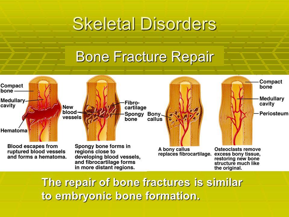 Skeletal Disorders The repair of bone fractures is similar to embryonic bone formation. Bone Fracture Repair