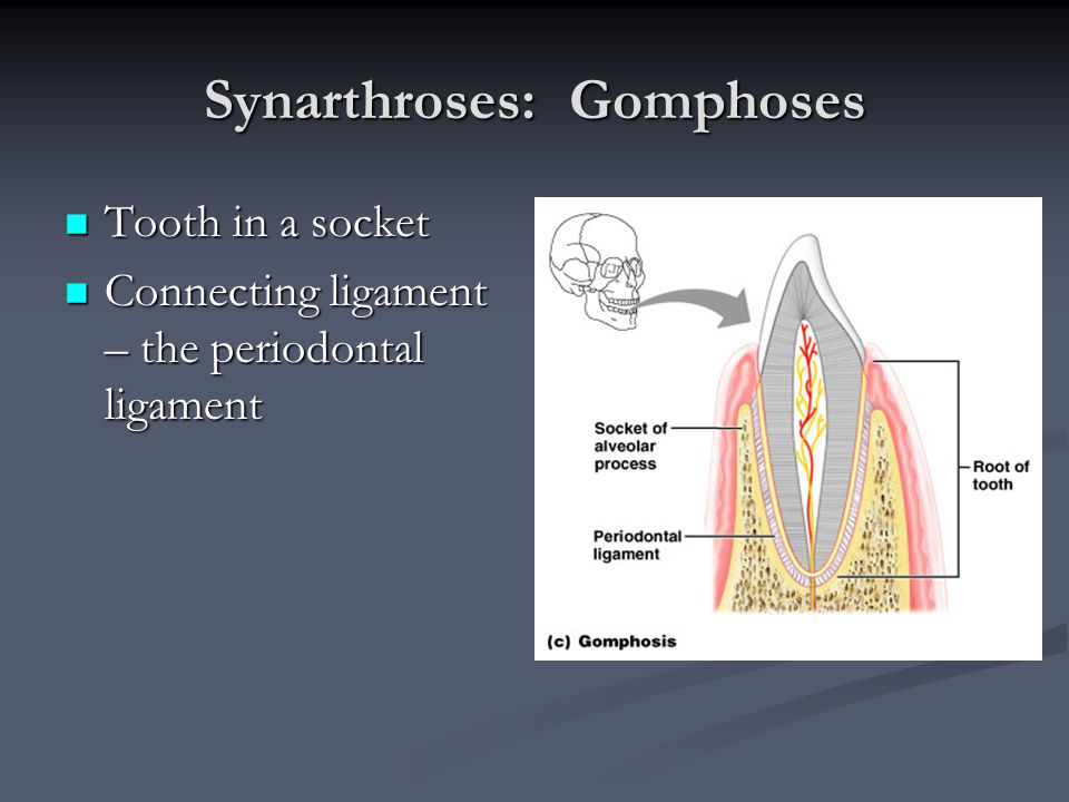 Synarthroses: Gomphoses Tooth in a socket Tooth in a socket Connecting ligament – the periodontal ligament Connecting ligament – the periodontal ligam
